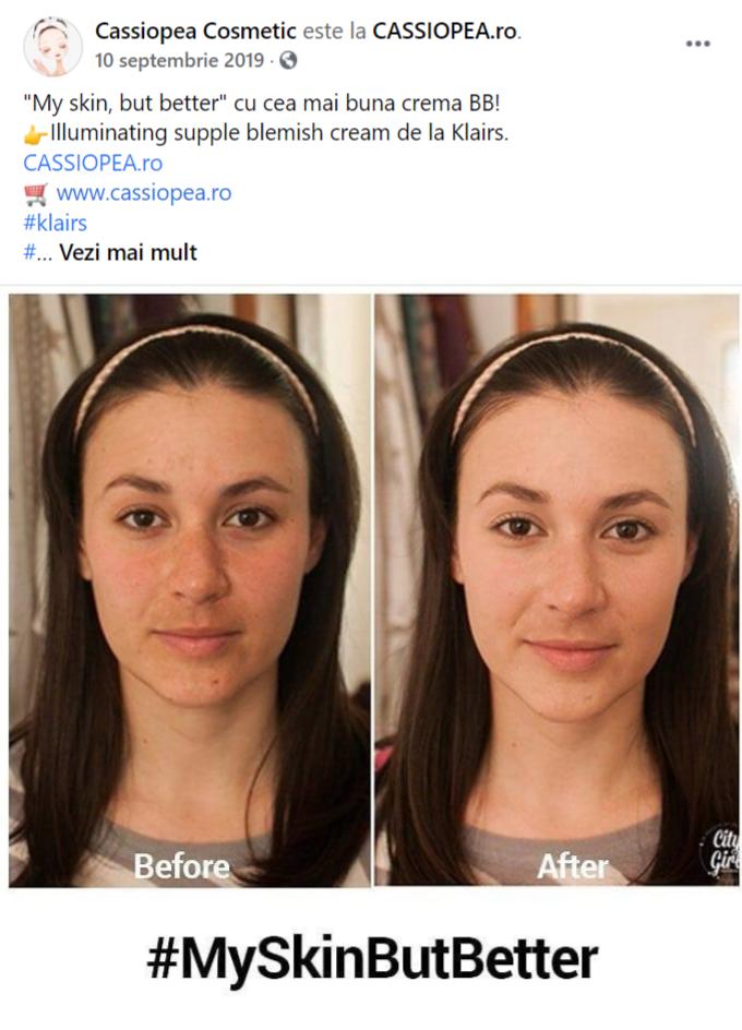 rezultate-folosire-produs-beauty